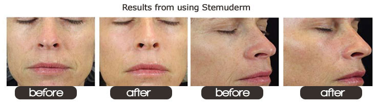 Stemuderm before after